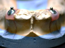 Prothese dentaire avec bouton pression
